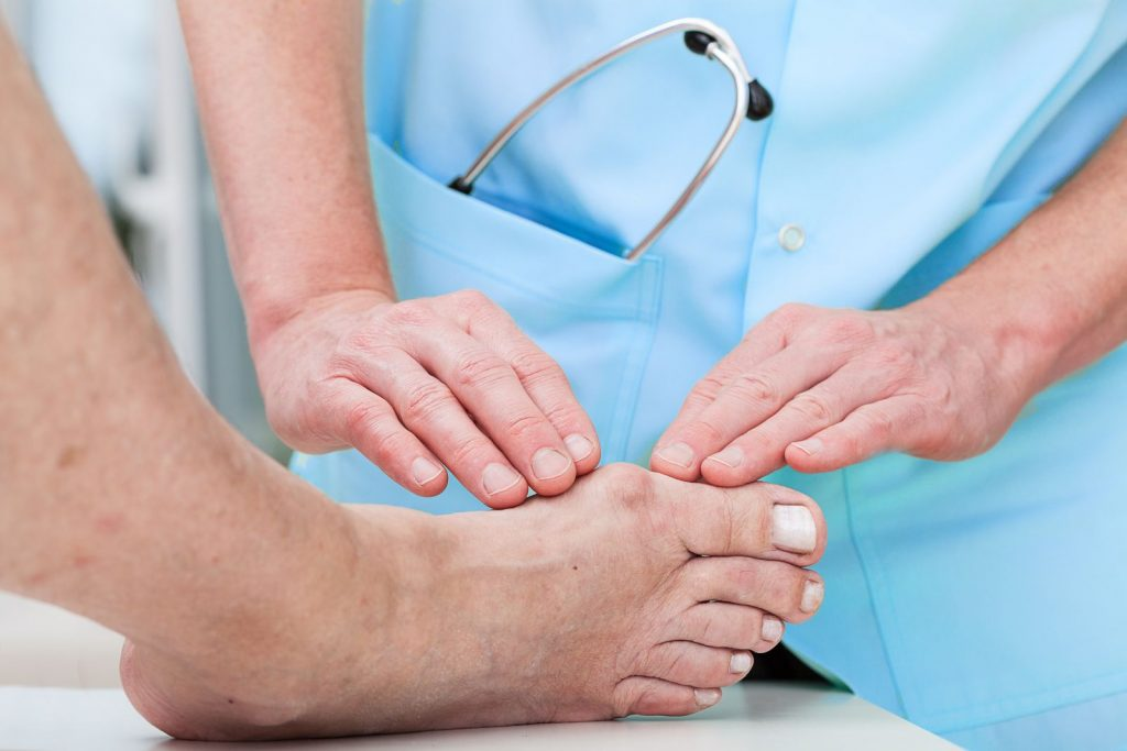 Bunion treatment